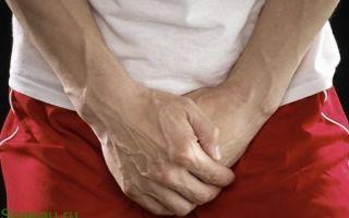 Как вылечить молочницу у мужчин народными средствами