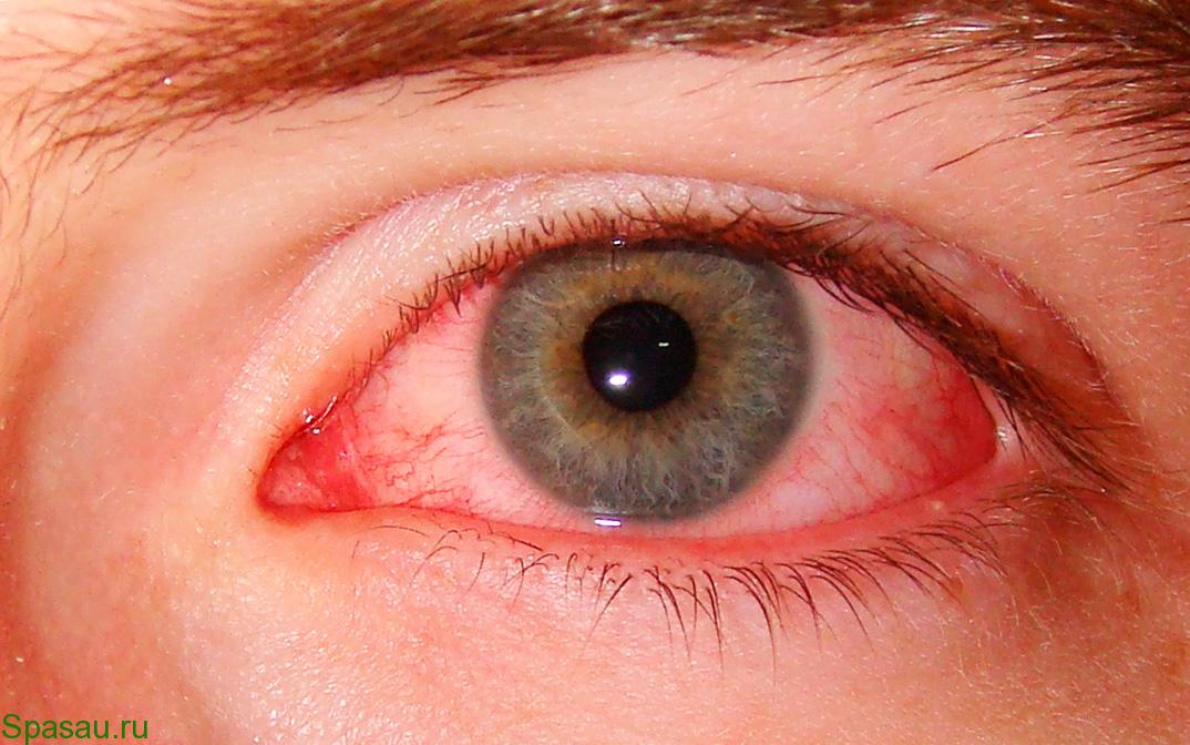Синдром сухого глаза лечение