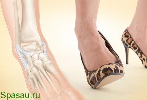Лечение растяжения связок суставов