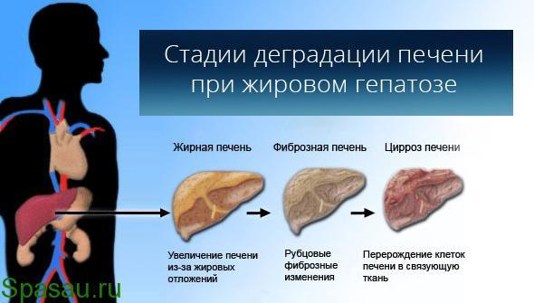 Гепатоз печени лечение