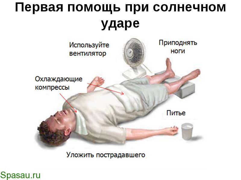 Тепловой удар лечение