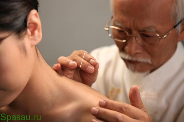 Особенности иглоукалывания при остеохондрозе